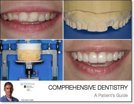 comprehensive-dentistry_dr-richard-burns_