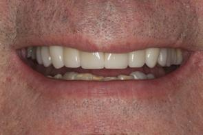 Dental Bonding Pre and Post Photos