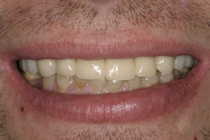 Implant Dentistry Before and After Photos