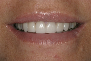 Aesthetic Dentistry, Cosmetic Dentistry