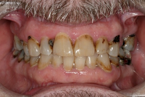 Dental Decay Treatment by Dr Richard Burns