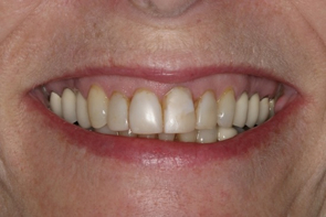 Dental Crowns Pre and Post Photos