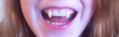 vampire-teeth0021